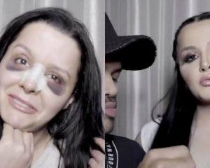 Vídeo: cantora sertaneja Maraísa mostra transformação para ocultar hematomas após operar nariz